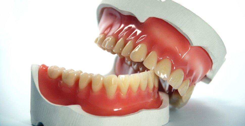 Dental-prosthetics.jpg